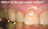 Porcelain/ceramic Crown on Lateral Incisor